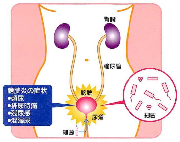 膀胱炎の治療と注意点